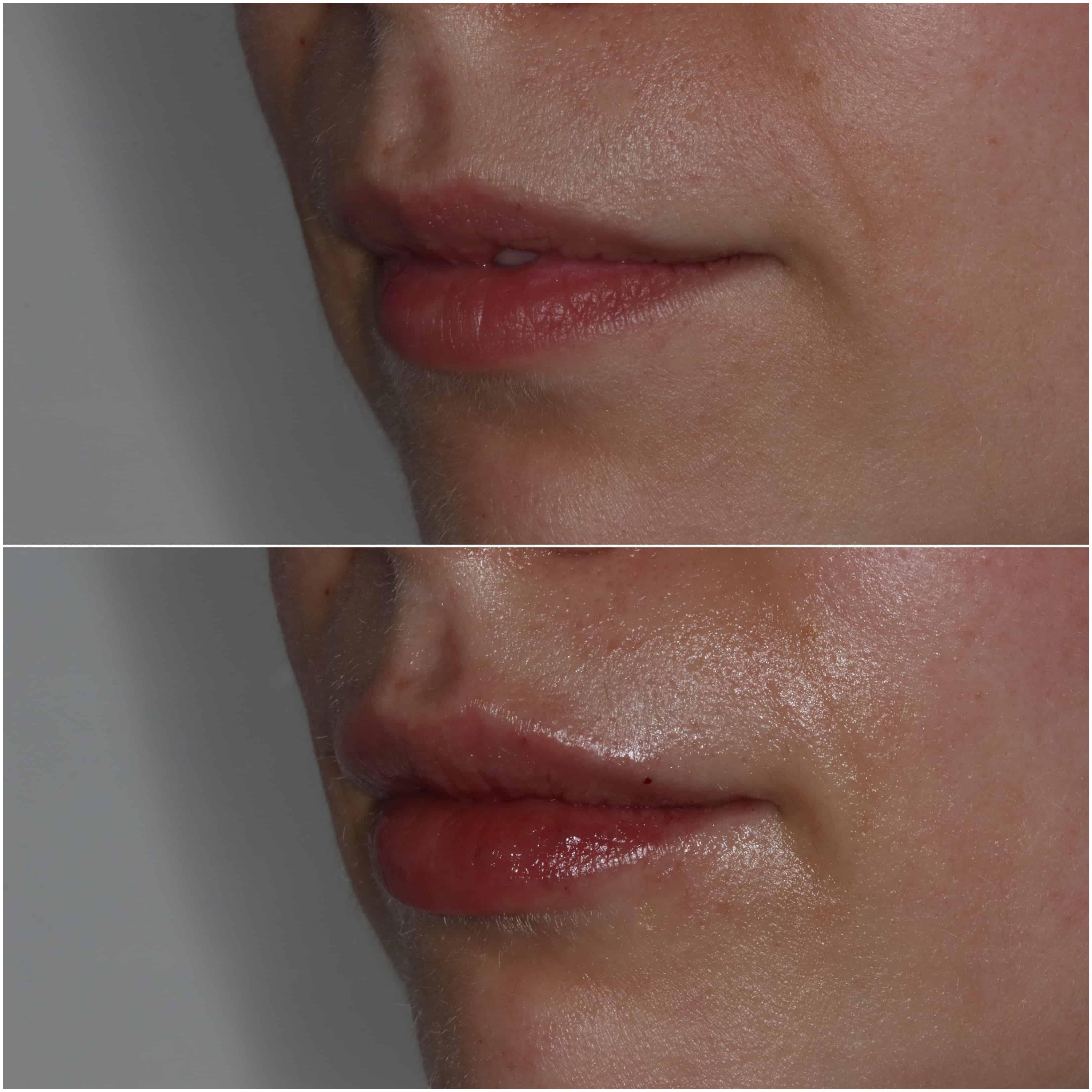 Dermal Fillers - Lip Fillers By Dr Celine Higton At Beverley Dental Raynes Park London