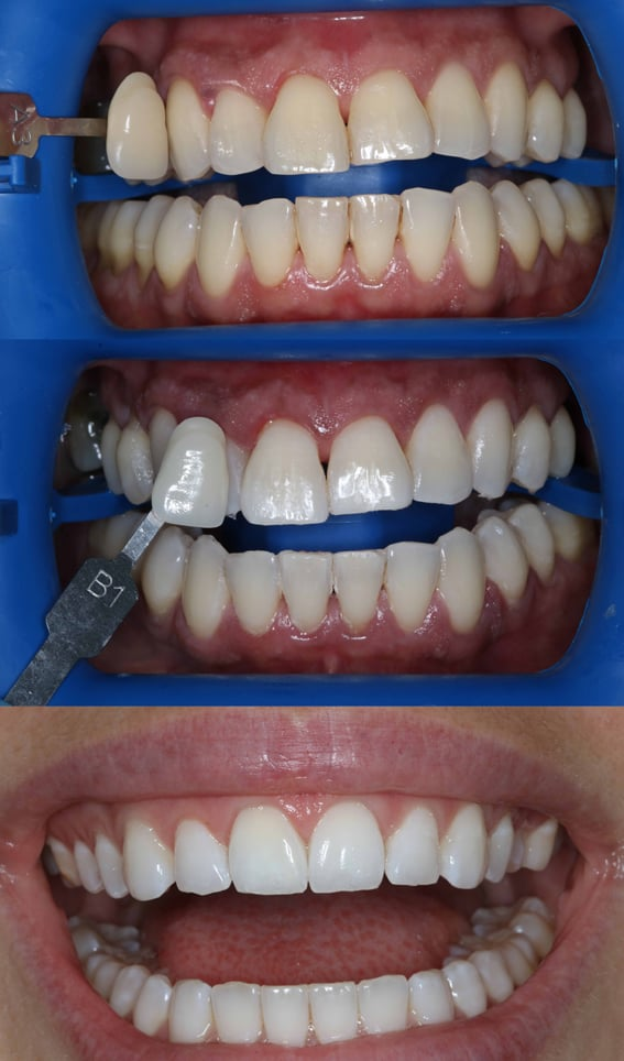 Philips Zoom Teeth Whitening By Dr Celine Higton At Beverley Dental Raynes Park London